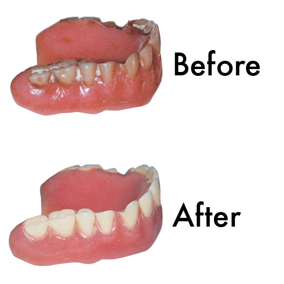 Information discovery denture center directions for use remove dentures from mouth and brush loose food particles from dentures dissolve one cap full of sparkle dent into denture cup with solutioingenieria Image collections