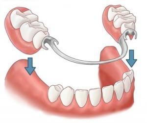 partial-dentures-small-300x251
